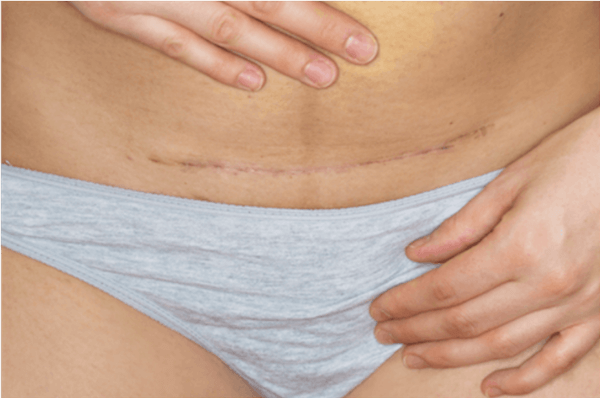 Scar on stomach after surgical fibroid treatment