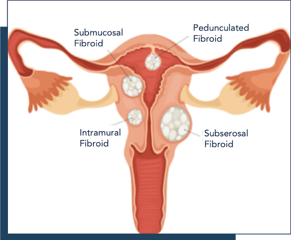 Fibroid Anatomy explained locations, types, and sizes of fibroids