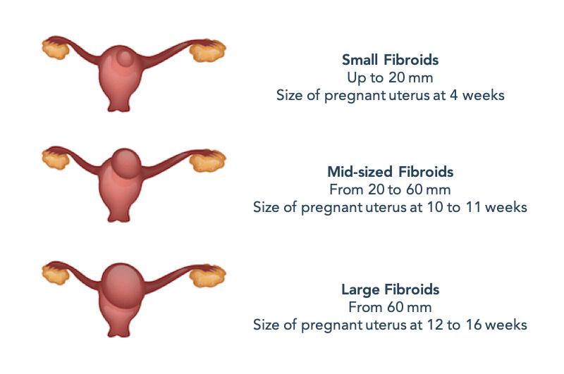 Diagram comparison of fibroid sizes comparing to the size of pregnant uterus