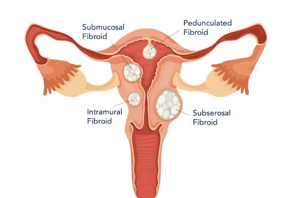 Fibroid Anatomy with submucosal fibroid, intramural fibroid, pedunculated fibroid, and subserosal fibroid types labeled