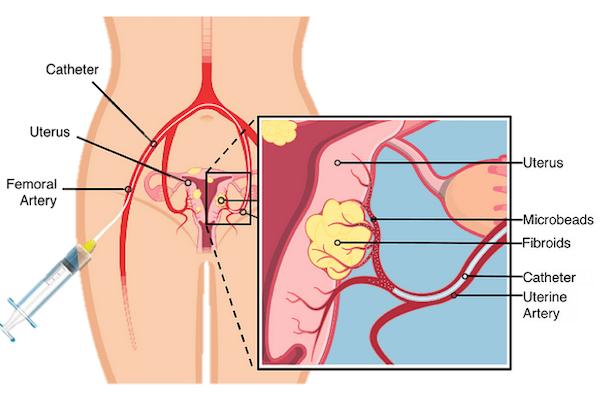 Uterine artery embolization procedure diagram
