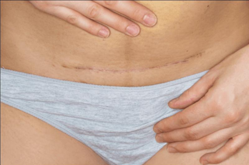 Fibroid removal surgery incision scar across abdomen